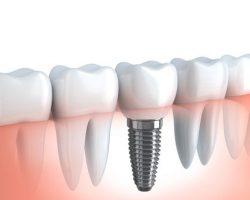 Dental Implants 2 Modesto, CA | Sierra Dental Care