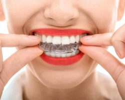 Invisalign Clear Braces Modesto, CA | Sierra Dental Care