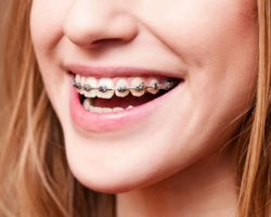 Orthodontics 1 Modesto, CA | Sierra Dental Care
