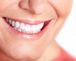 Teeth Whitening 1 Modesto, CA   Sierra Dental Care